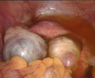 Vagina knoten an der Im Intimbereich